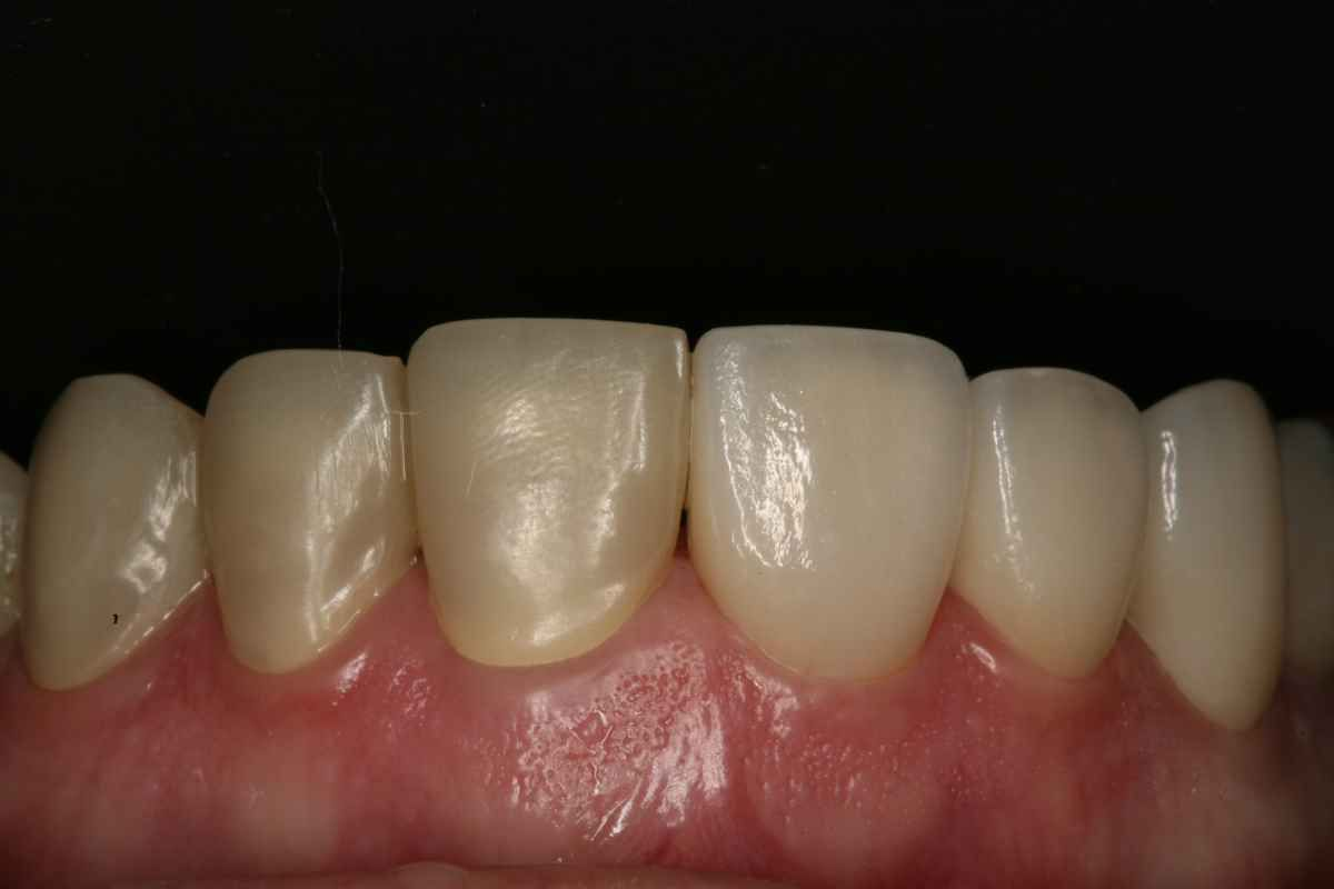 Left provisionals right crowns try-in<span></span>